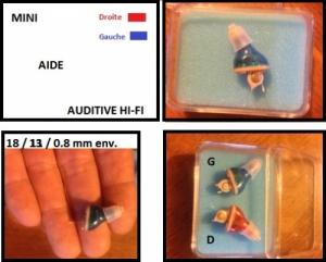 aides auditives - hearing aid