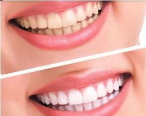 kit blanchiment dentaire